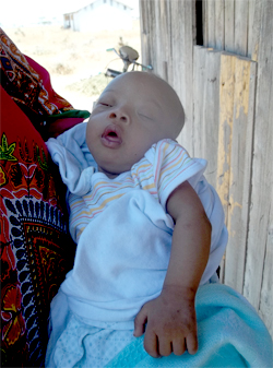 Urgent Special Need – Baby Ifran